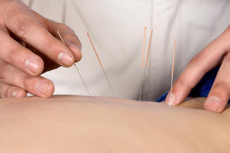 Acupuncture San Diego, CA